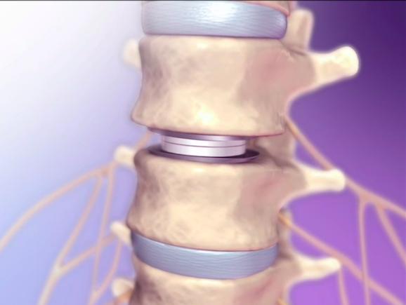disco intervertebrado, el amortiguador que existe entre las vértebras0